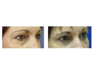 eyelid surgery before and after- plastic and cosmetic surgery in CT