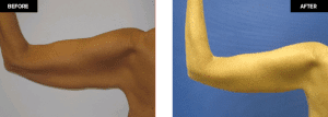 arm lift before and after- plastic and cosmetic surgery in CT