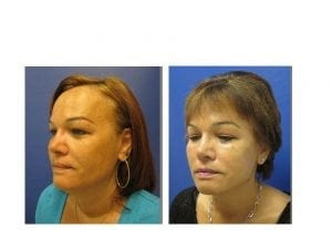 face lift before and after- plastic and cosmetic surgery in CT