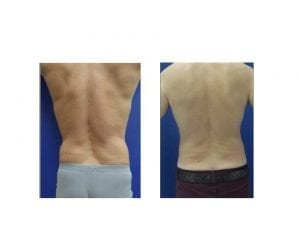 liposuction before and after- plastic and cosmetic surgery in CT
