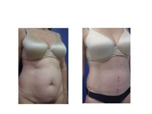 Abdominoplasty before and after- plastic and cosmetic surgery in CT