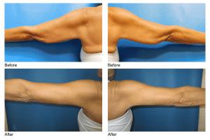 Dr. Sohel Islam-Arm Lift/Brachioplasty