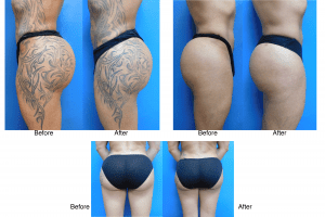 Buttock and Liposuction before and after