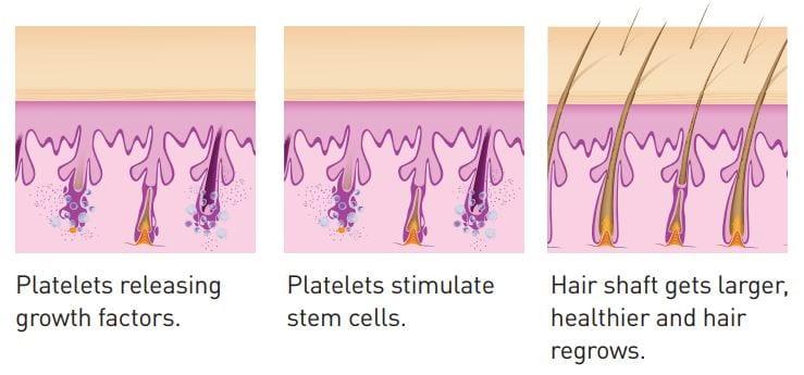 Eclipse PRP Hair Restoration Diagram- How PRP Works