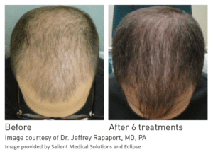 PRP male hair restoration before and after- Treatment for Thinning Hair in CT