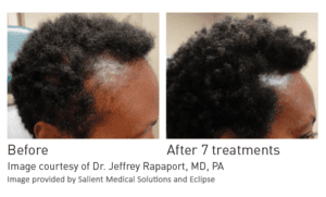 PRP hair restoration before and after