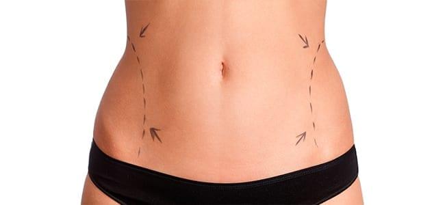 Woman Getting Liposuction