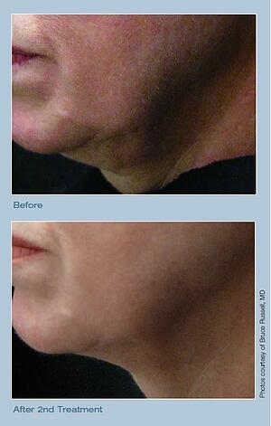 Titan: Skin Tightening at Advanced Specialty Care