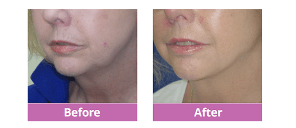 Liquid Facelift with Spot Liposuction to Jowls Before and After
