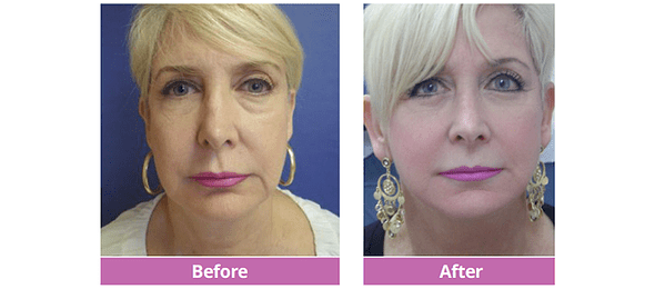Full Facelift Before and After