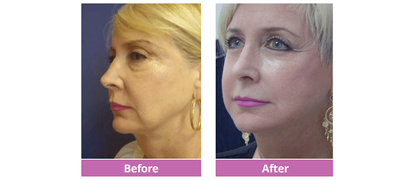 Full Facelift Before and After Side View