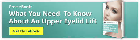 What You Need To Know About An Upper Eyelid Lift