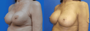 Dr. Sohel Islam - Breast Augmentation