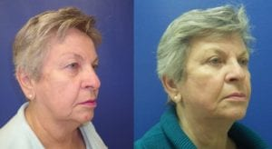 Dr. Sohel Islam - Facelift and Eyelid
