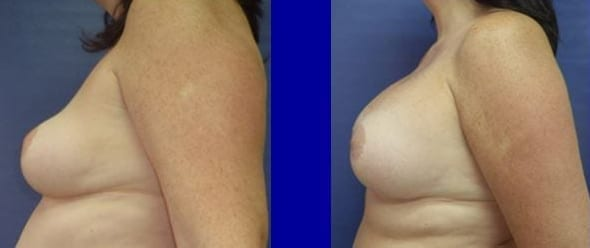 Breast implants before and after photos