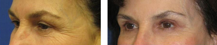 Eyelid before and after photos