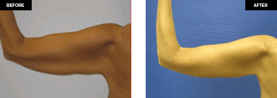 Arm lift /Brachioplasty before and after photos