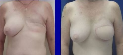 Breast Reconstruction before and after photos