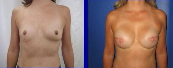 Female Breast Reconstruction before and after photos