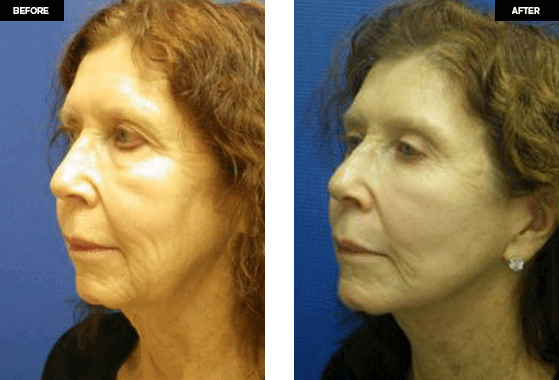 Face Lift Surgery Before and after Photos