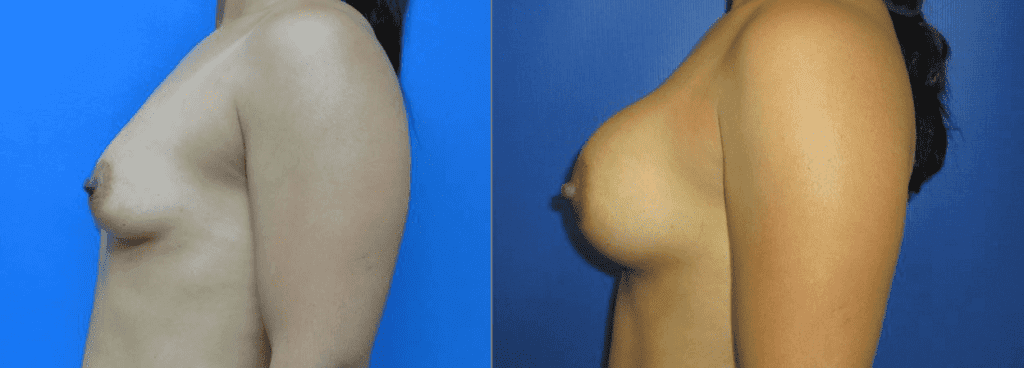 Breast Implants surgery before and after photos