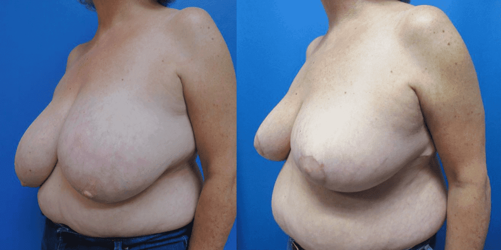 Bilateral Breast Reduction before and after photos