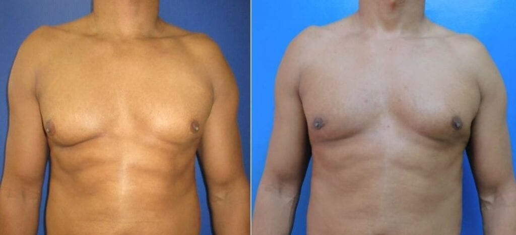 Right Sided Gynecomastia Excision surgery before and after photos