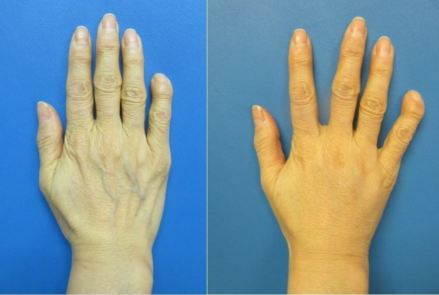 Radiesse Hand Rejuvenation surgery before and after photos
