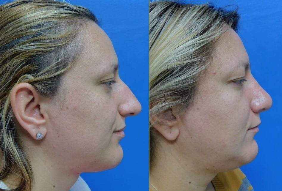 Rhinoplasty surgeryy before and After Photos
