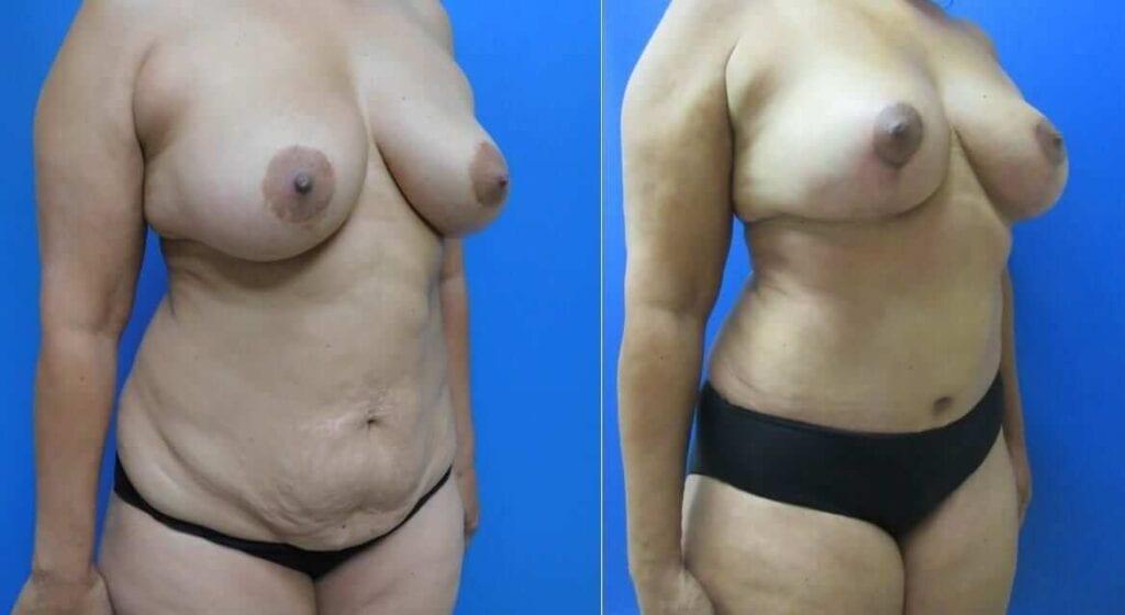 Abdominoplasty & Breast Lift photos