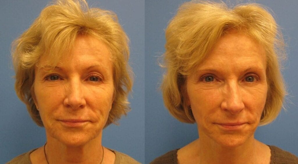 Eyelid & Mini Facelift before and after photos