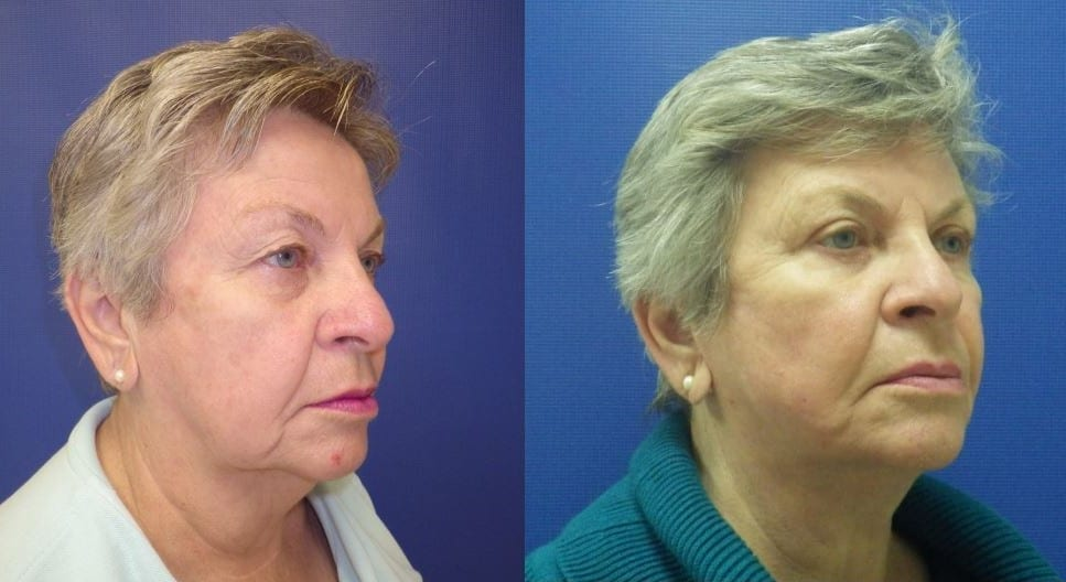 Facelift and Eyelid before and after photos