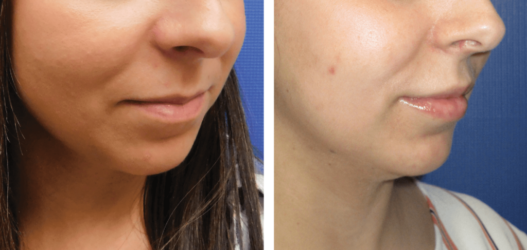 Lip Filler/Lip Augmentation before and after photos
