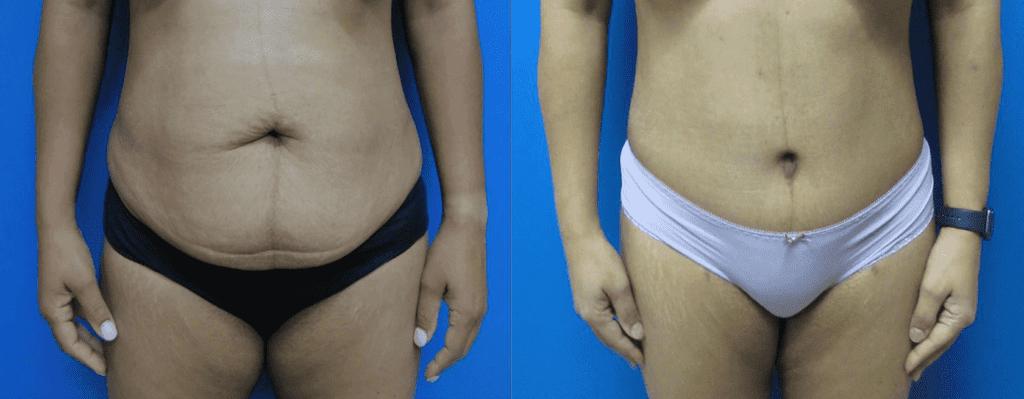 Abdominoplasty photos