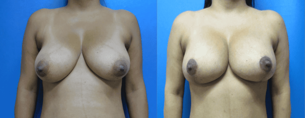 Breast Augmentation surgery photos