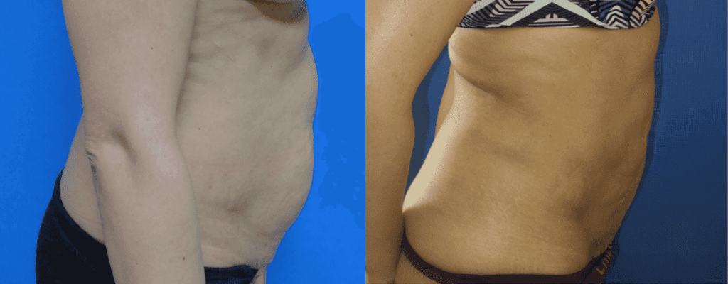 Liposuction of Abdomen Surgery before and After Photos