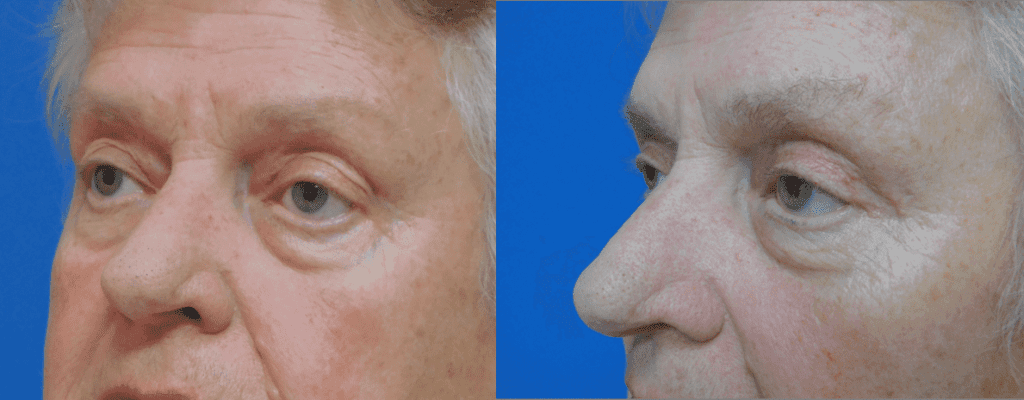 Upper Eyelid Surgery before and After Photos