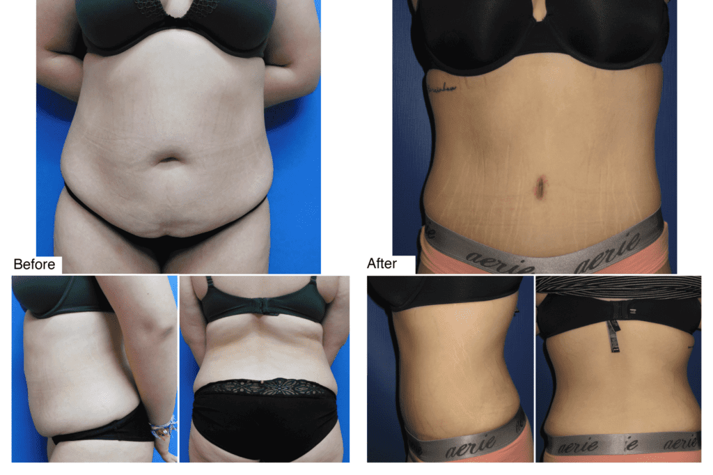 Tummy Tuck /Abdominoplasty before and after Photo