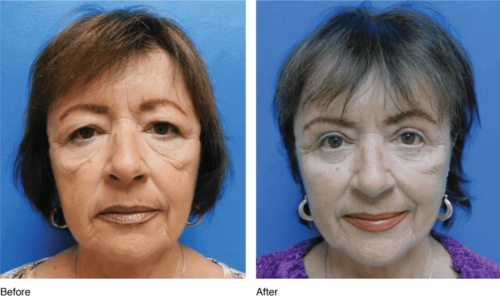 Upper & Lower Eyelid Surgery before and after photos