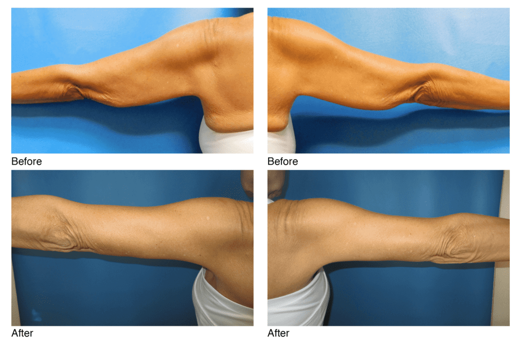 Arm Lift/ Brachioplasty Before and after Photos