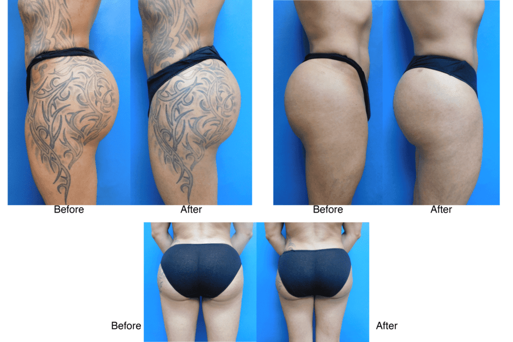 Liposuction-Buttock surgery before and after photos