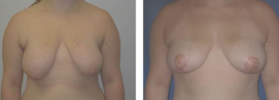 Female Breast Reduction before and after photos