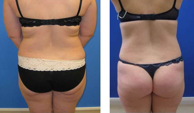 Liposuction Surgery before and after photos